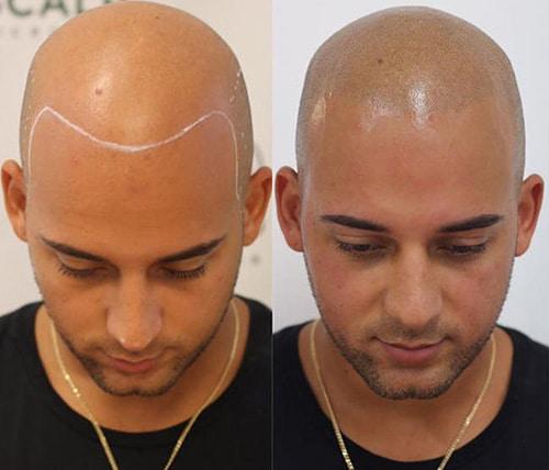Dermopigmentation des cheveux, contre la calvitie