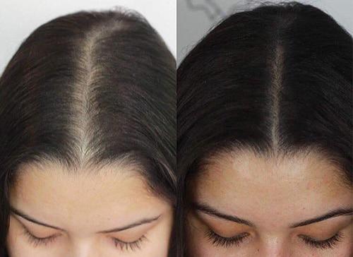 coloration (ou dermopigmentation) des cheveux