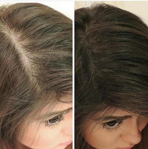dermopigmentation des cheveux